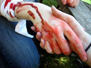 800px-Blood_Handshakes